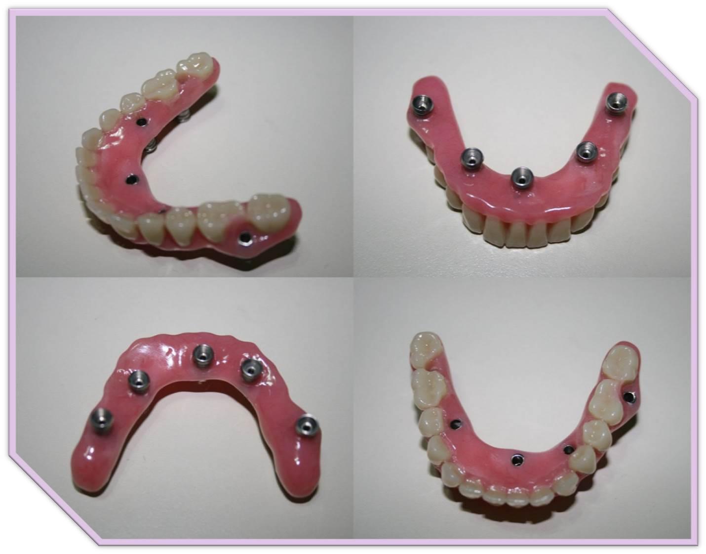 Curso Protesis Hibrida Sobre Implantes Aprodenaproden